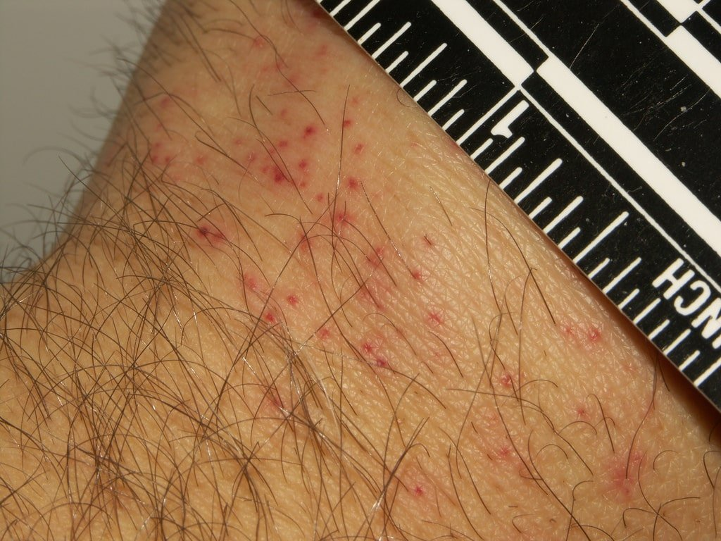 Bed Bug bites appearance